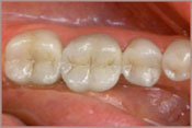 invisable fillings before after image